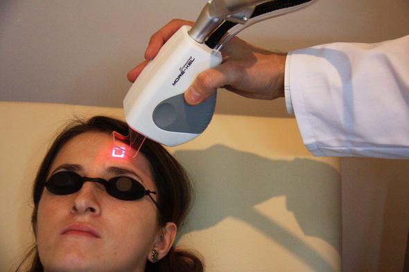 laser frakcyjny zabieg
