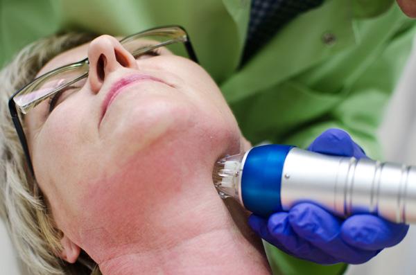 Urządzenie do radiofrekwencji mikroigłowej jednocześnie nakłuwa i podgrzewa skórę (fot. Pink Media)