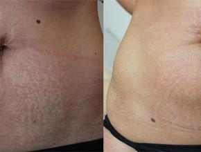 Rozstępy na brzuchu (zdjęcia z zabiegów)