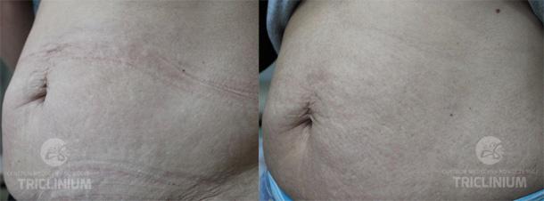 Oprócz rozstępów jest problem nadmiaru tkanki tłuszczowej i nadmiaru skóry