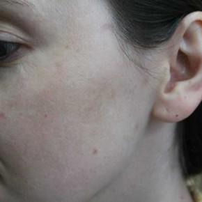 Przebarwienia – efekty kuracji