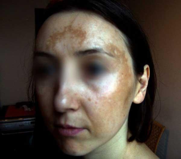Pani Edyta od lat walczy z przebarwieniami. Takie zdjęcie wysłała do konkursu Trudne Przypadki.