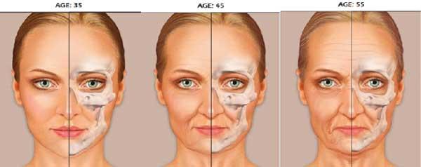 Przebudowa kości twarzoczaszki z wiekiem