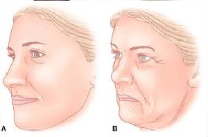 Zmiany w dolnej części twarzy