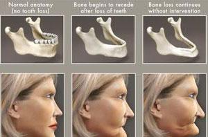 Wpływ uzębienia na kształt twarzy