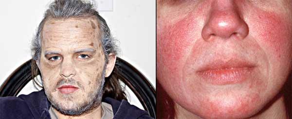 Przebarwienia i popękane naczynka nie wskazują jednoznacznie, że mamy do czynienia ze starą twarzą