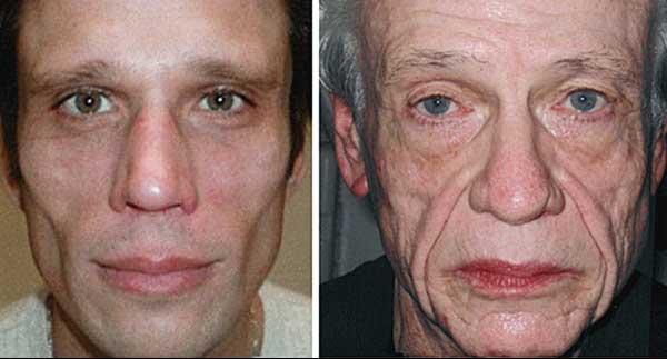 Z wiekiem zmieniają się proporcje twarzy