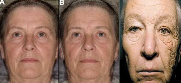 Czynnikiem zewnętrznym, najbardziej wpływającym na starzenie, jest promieniowanie słoneczne