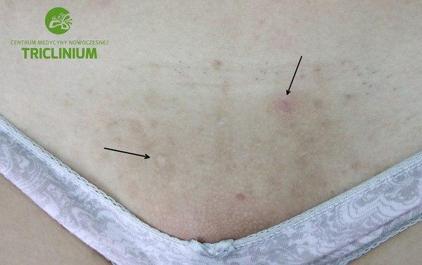 Powikłania po nieprawidłowej depilacji bikini, strzałki to odbarwiona blizna i blizna zanikowa. Jest jeszcze czerwona blizna i  całość skóry jest przebarwiona/brązowa