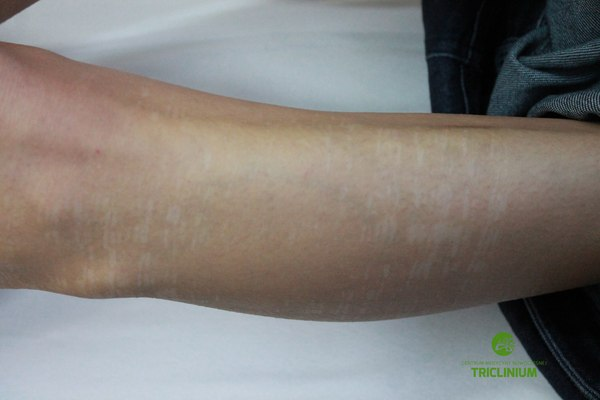 Powikłanie po depilacji nogi - odbarwienia