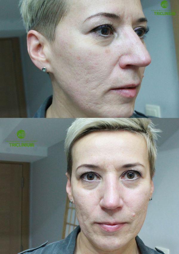 Blizny potrądzikowe W TRAKCIE leczenia (po dwóch zabiegach). Efektem ubocznym - wyraźna poprawa owalu twarz