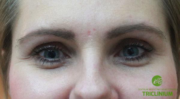 Usuwanie makijażu permanentnego: efekt finalny, nie ma śladu po makijażu permanentnym i widać, że włosy już odrosły (fot. arch. własne Triclinium)