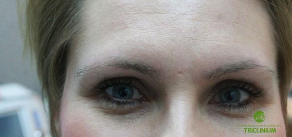 Usuwanie makijażu permanentnego: widok po kolejnych zabiegach, skóra już doszła do siebie, włoski jeszcze cały czas osłabione (fot. arch. własne Triclinium)