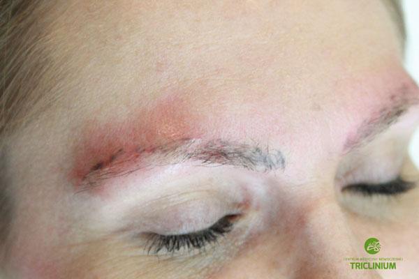Usuwanie makijażu permanentnego: widok po wykonaniu pierwszego zabiegu (fot. arch. własne Triclinium)