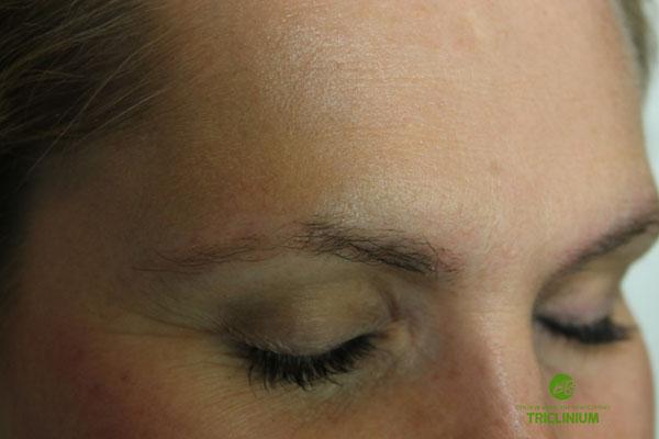 Usuwanie makijażu permanentnego: w trakcie zabiegów, widać, że włoski są osłabione, a skóra jest jaśniejsza (fot. arch. własne Triclinium)