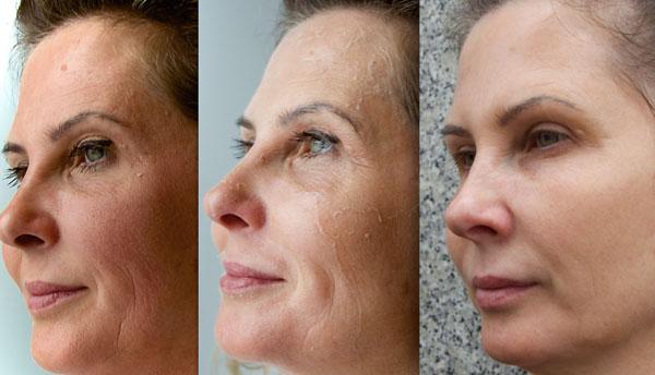 Perfect Derma Peel jest zaawansowanym, chemicznym peelingiem medycznym.