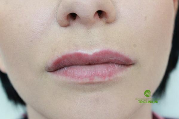 Po kilku dniach, o zaaplikowaniu leków i rozpuszczeniu kwasu, usta wróciły do normy (fot. arch. własne)