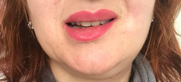 Uszkodzenie nerwu twarzowego w czasie zabiegu HIFU jest przykładem wysoce rażącej niekompetencji osoby wykonującej zabieg (fot. za zgodą klientki)