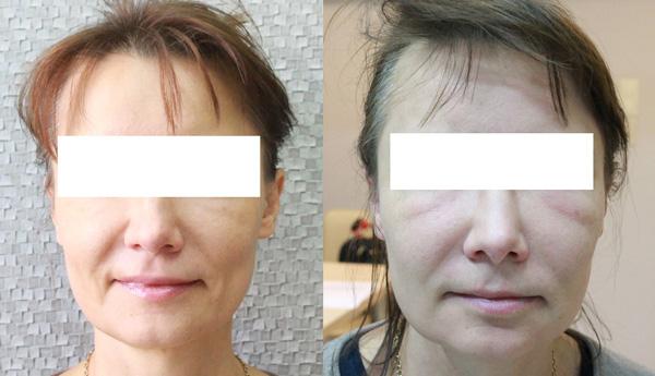 Po lewej stronie: pacjentka na co dizeń. Po prawej stronie, pacjentka, która oszpecono kwasem hialuronowym (fot. arch własne)