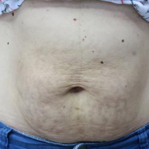 Rozstępy na brzuchu (prawdziwy przypadek)