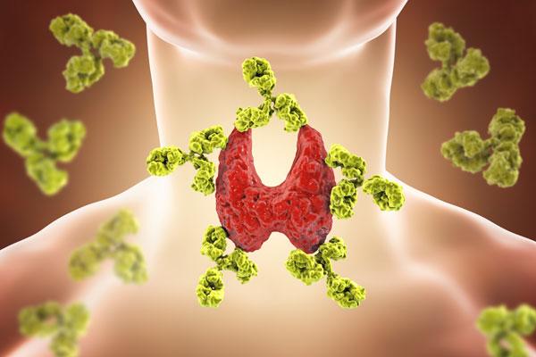 Choroby tarczycy to nie tylko problem zdrowotny, wpływają one także na urodę (fot. Fotolia)