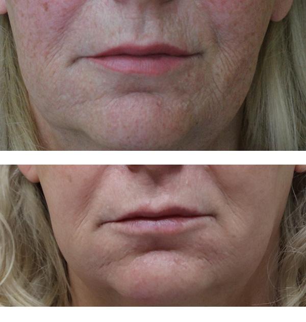 Przed i miesiąc po zabiegu (materiały własne riclinium)