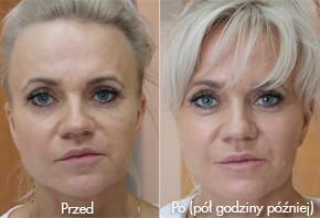 Asymetria twarzy, czyli jak w pół godziny poprawić życie