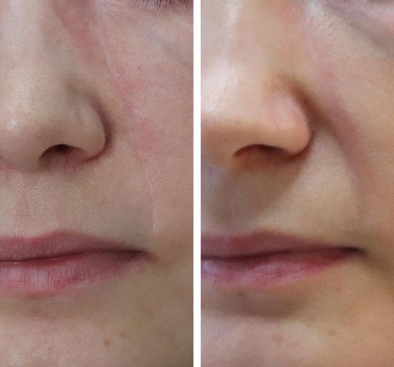 blizna na twarzy przed zabiegiem i po roku terapii