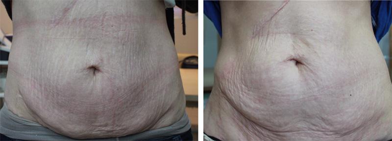 obwisły brzuch przed i po zabiegu rf mikroigłowej