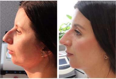profil pacjentki po zabiegu modelowania nosa i bródki