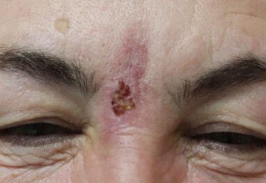 martwica na czole po zabiegu kwasem hialuronowym