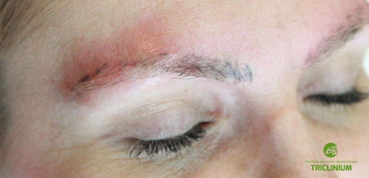 Prawdziwe przypadki: usuwanie makijażu permanentnego