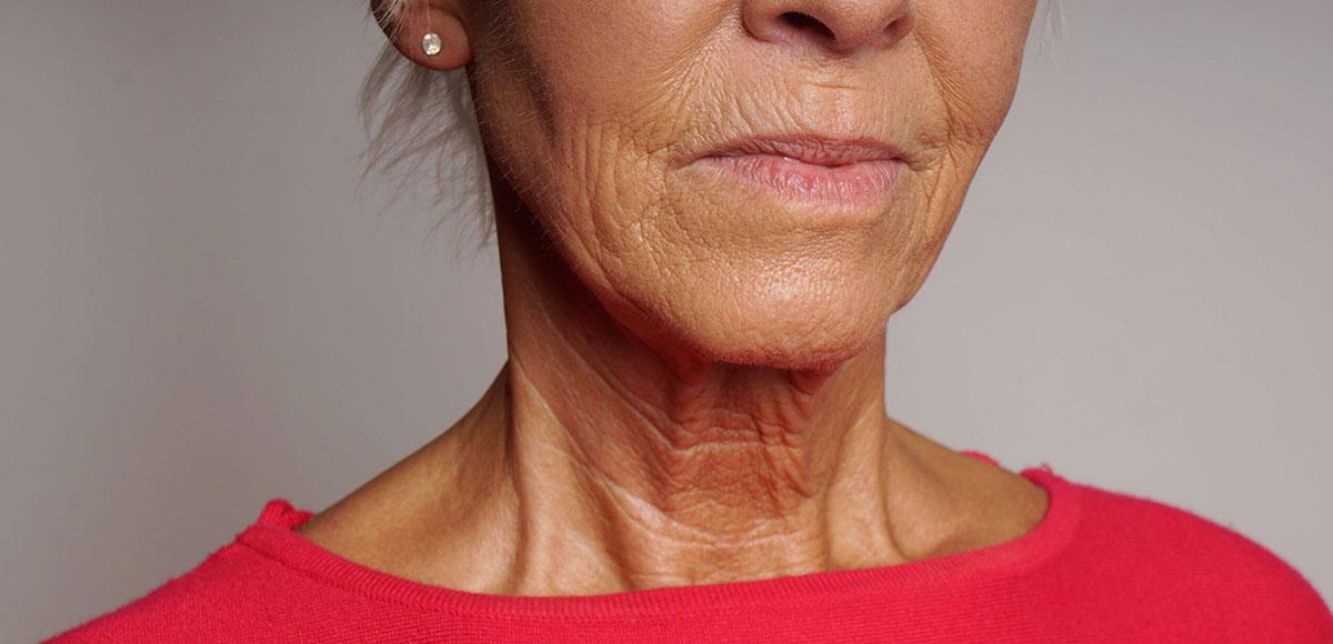 Cechy starzejącej się twarzy