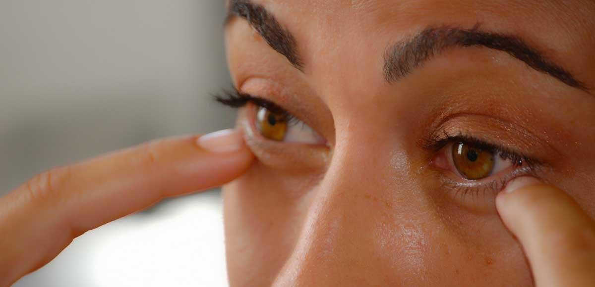 Obrzęki pod oczami u kobiety