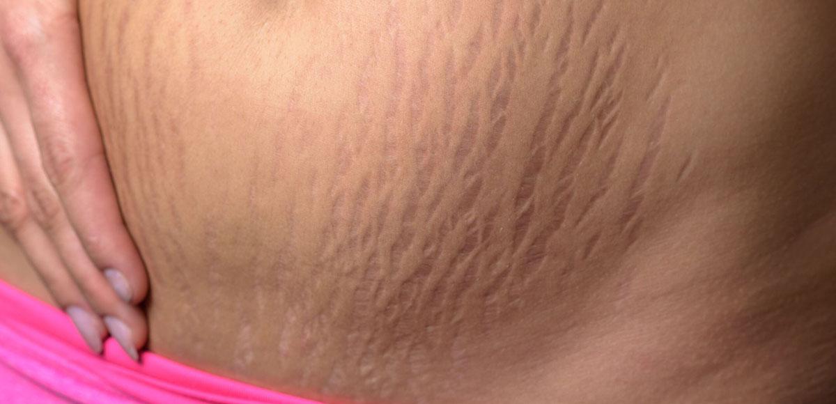 Rozstępy na brzuchu - efekty zabiegów
