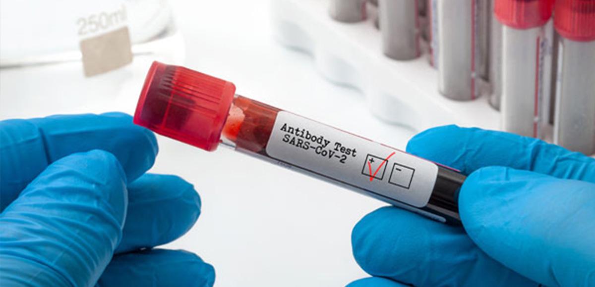 Test na przeciwciała koronawirusa SARS-CoV-2