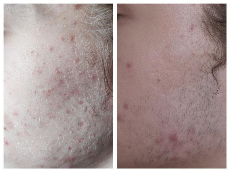 leczeni trądziku, przed i po kuracji