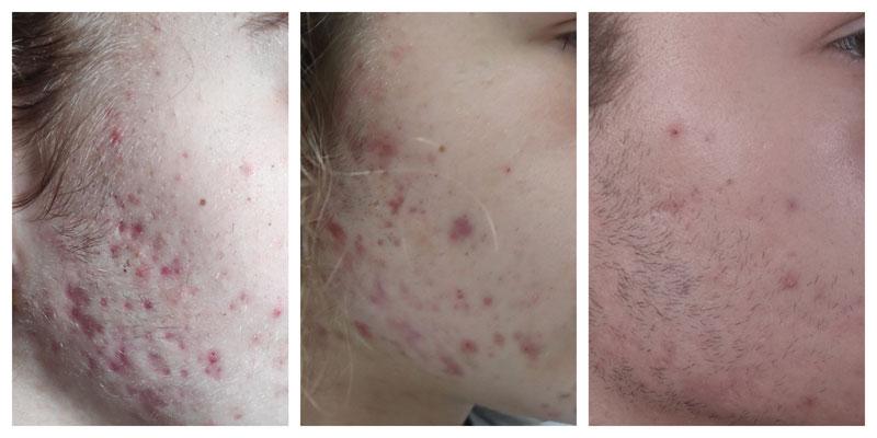 trądzik - przed, po i w czasie leczenia